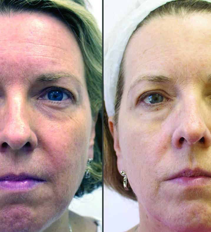 Elaine Sterling Skincare regimen results